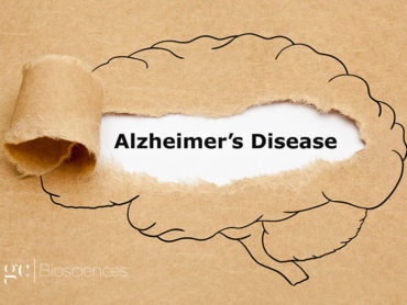 High Aluminium is LINKED with Alzheimer's Disease.